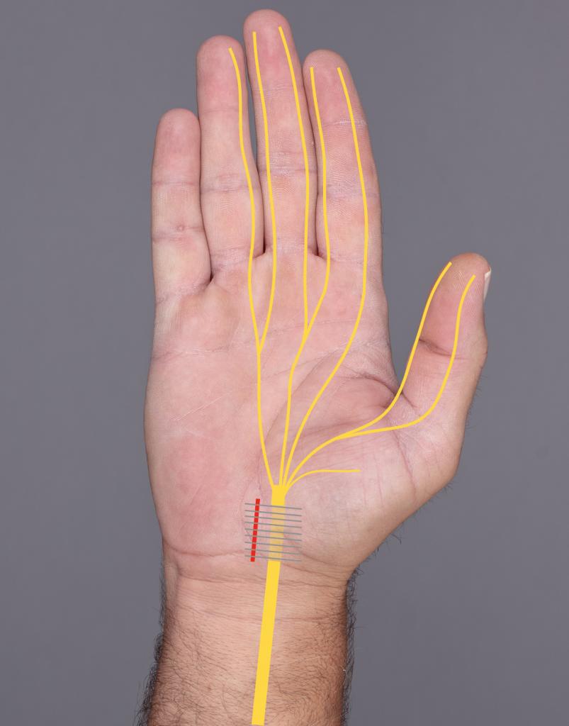 Schematische Darstellung der Spaltung des Karpaltunnels und Verlauf des Nervus medianus (gelb)